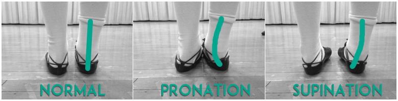 irish dance_ready to feis_Irish dancing and a sickled foot_pronation supination